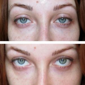 коррекция носослезной борозды эффект