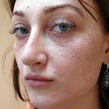аллергия при нервных расстройствах