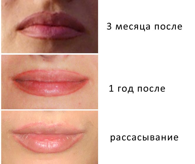 перманентный макияж губ заживление