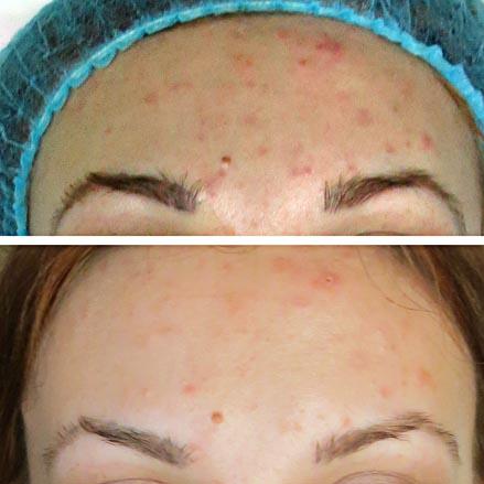 эффект ультразвуковой чистки лица