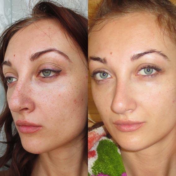 Пигментные старческие пятна на лице