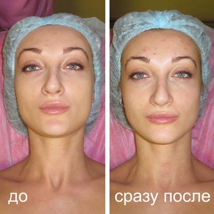 криомассаж до и после фото