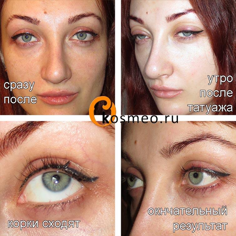 Как делается татуаж глаз стрелки, фото до и после - t