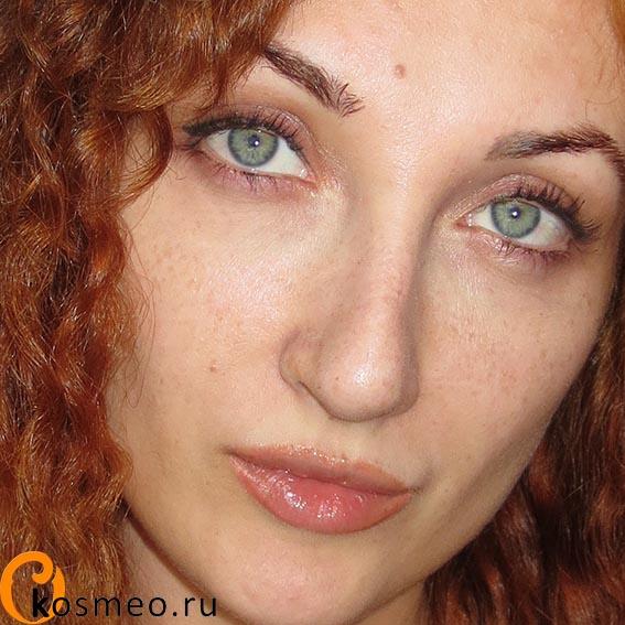 Салибекова после ринопластики фото
