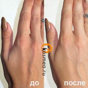 уход за руками до и после