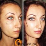 побочные эффекты косметологии