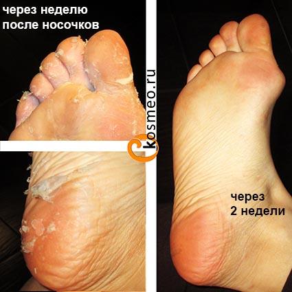 педикюрные носочки не подействовали