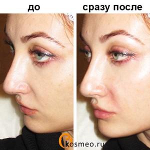 коррекция носогубных складок до и после