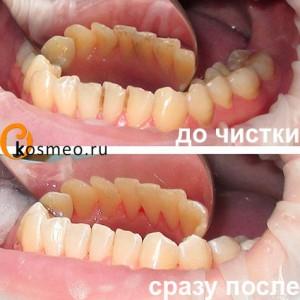 удаление зубных камней до и после