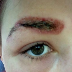 аллергия на хну для бровей фото