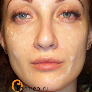 крем-антиоксидант для лица Vitamin Care с витамином E Librederm