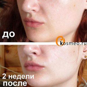 коррекция носогубных складок
