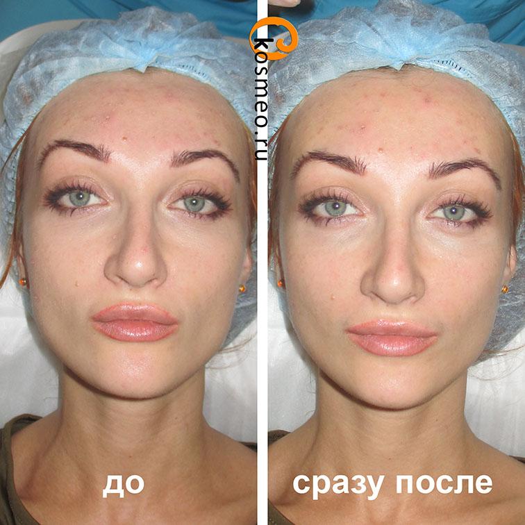 карбоновый пилинг отзывы до и после фото