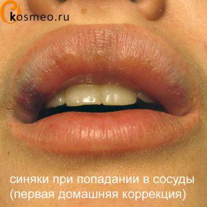 увеличение губ гиалуроновой кислотой в домашних условиях